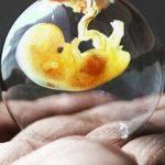 این خوراکی ها را بعد از سقط جنین بخورید