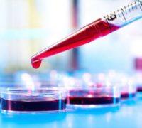 درمان قطعی کم خونی در بارداری