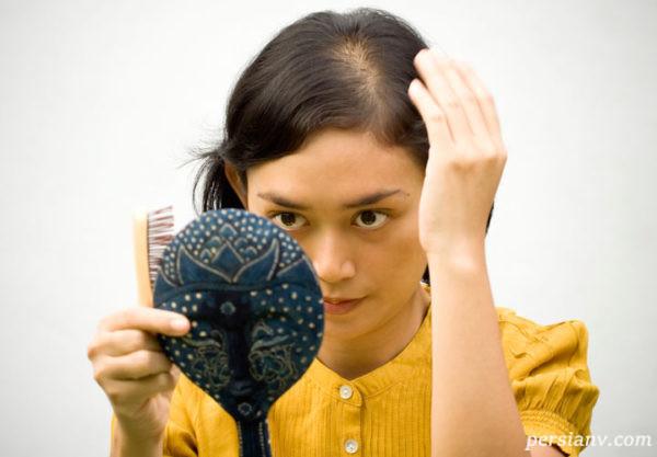 عواملی که باعث ریزش مو در دوران بارداری میشود