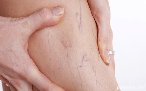 علت واریس پا در دوران بارداری