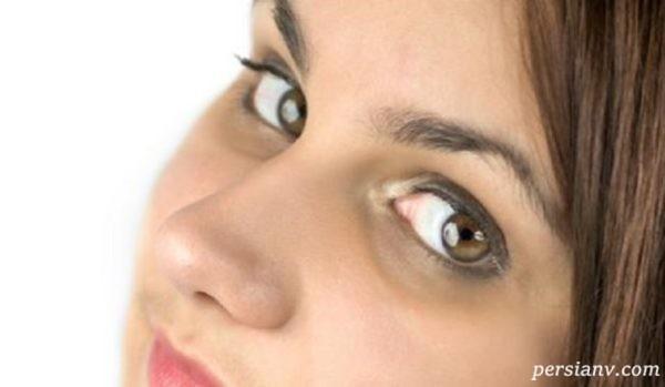 سیاهی دور چشم در بارداری