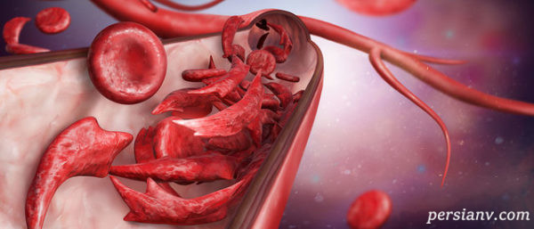 همه چیز درباره کم خونی در دوران بارداری