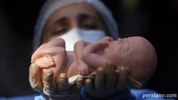 علت سقط جنین مکرر