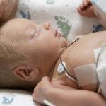 زایمان زودرس خطراتی را برای مادر و جنین دارد؟