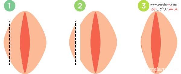 جراحی لابیا پلاستی با تکنیک قطع کردن یا برش صاف