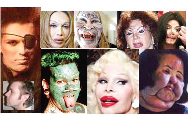 وحشتناک ترین چهره ها که زیر تیغ جراحی زیبایی رفتند / از مردی با صورت زنانه تا زنی با صورتی فضایی / ۱۰ ماجرای خواندنی+عکس