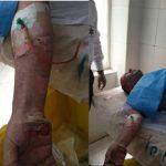 انفجار کپسول اکسیژن در پایگاه اورژانس و سوختن دو نفر از پرسنل درتهران+تصاویر