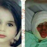 دخترک سوخته در دیگ نذری جان سپرد