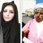 گفتوگوی تکاندهنده با زن قربانی اسیدپاشی توسط خواستگارش در تبریز!