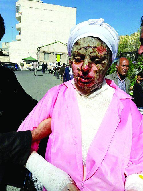 زن قربانی اسیدپاشی