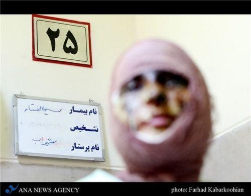 اسیدپاشی در تهران