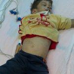 جزئیات مرگ دردناک کودک ۴ ساله زیر شکنجههای خاله معتادش!!