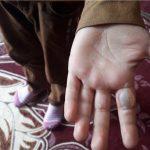 تنبیه بدنی دانش آموز توسط معلم در اردبیل + عکس
