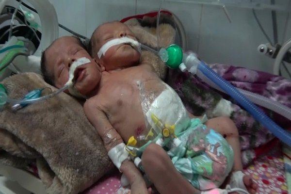 نوزادان یمنی