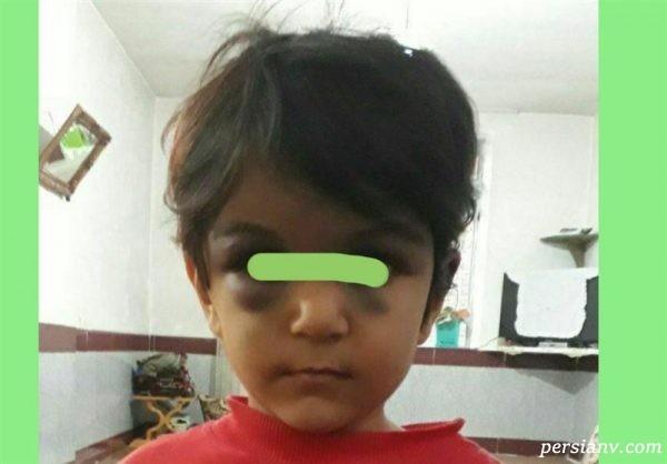 ظلم نامادری در ارومیه دختر ۵ ساله را راهی بیمارستان کرد + عکس