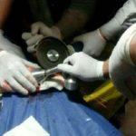 حادثه بسیار تلخ گیر کردن دست بچه در چرخ گوشت خانگی