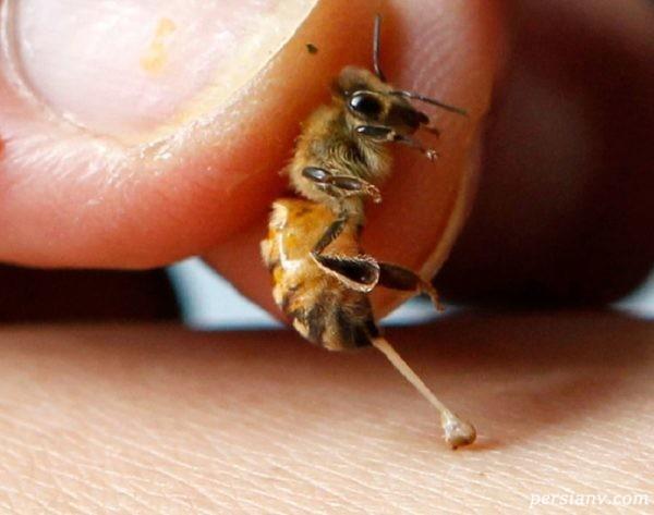 نیش زنبورهای زرد بلای وحشتناکی را سر مجری معروف آورد