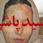 اسیدپاشی روی زن جوان در غرب تهران توسط یک موتورسوار