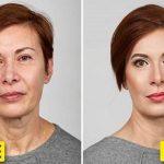 مراحل کامل آرایش جوان سازی و زیبایی صورت
