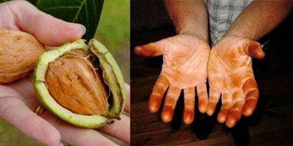 لکه میوه روی دست