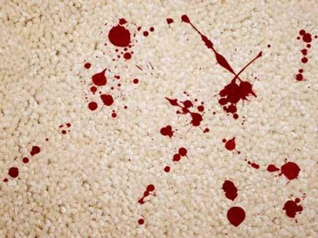 پاک کردن لکه خون از لباس