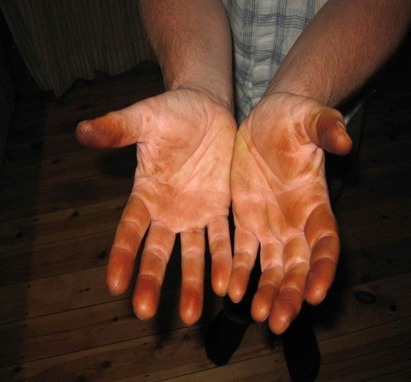 پاک کردن لکه گردو از دست