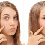 راحت ترین روشهای خانگی برای درمان جوش های زیر پوستی+تصاویر