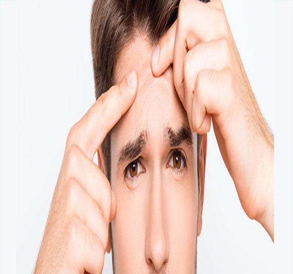 خوراکی های درمان جوش صورت