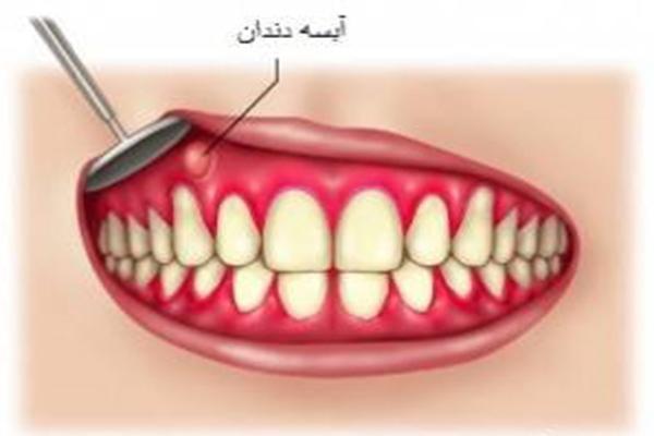 آبسه دندان را با این مواد غذایی درمان کنید