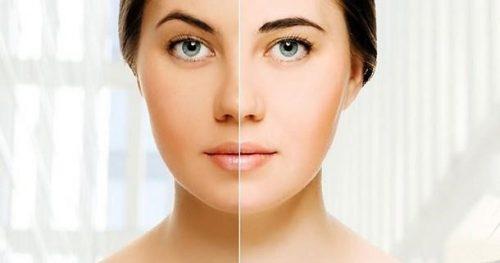 مواد غذایی برای داشتن پوست روشن