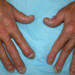 عارضه آرتریت پسوریاتیک با این خوراکی ها درمان میشود
