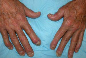 عارضه آرتریت پسوریاتیک