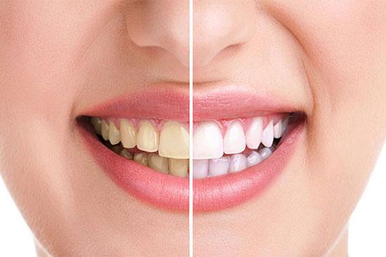 سفید کردن دندان ها به روش های طبیعی