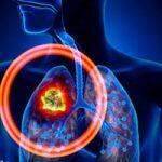 این موادغذایی را بخورید تا هرگز سرطان ریه نگیرید + اینفوگرافی