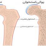 قویترین سلاح گیاهی برای مقابله با پوکی استخوان