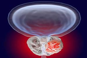 بهترین راهکارها برای پیشگیری از سرطان پروستات