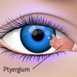 بیماری ناخنک چشم چگونه درمان می شود؟