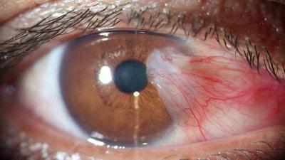 علت ناخنک چشم