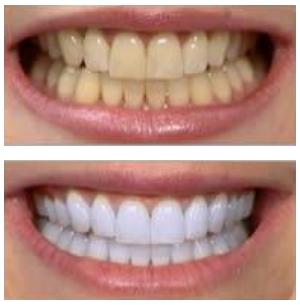 چه وقت باید دندانها را جرمگیری کرد؟