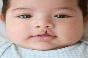 دلیل مبتلا شدن نوزادان به عارضه شکاف کام