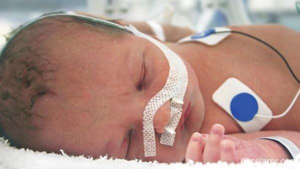 ناهنجاریهای مادرزادی شایعترین علت مرگ و میر کودکان
