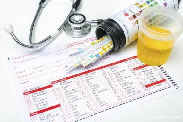 wbc در آزمایش ادرار نوزاد