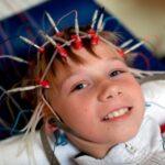 بهترین گزینه برای درمان صرع کودکان