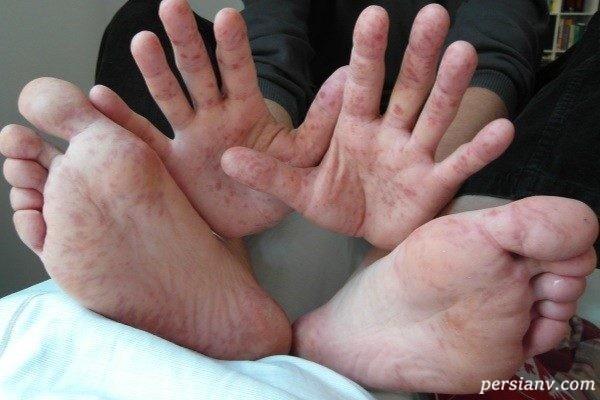 بیماری دست , پا , دهان