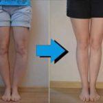 شایعترین علت پای پرانتزی در نوزادان