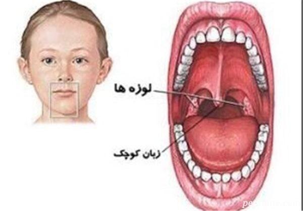 جراحی لوزه سوم