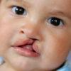 عوامل موثر بر بیماری لب شکری + راه های درمان لب شکری در کودکان