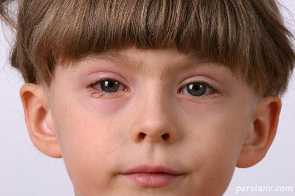 بیماری چشم در کودکان