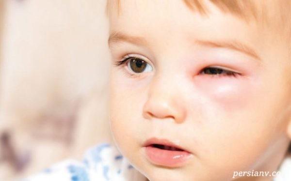 نشانه های بیماری چشم در کودکان