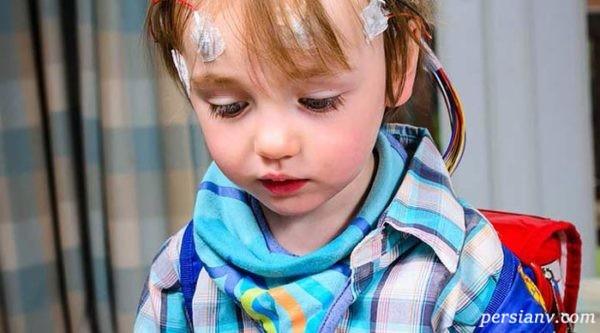 درمان صرع در کودکان